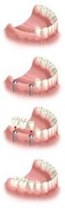 implant several teeth