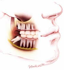 wisdom teeth dentist Melbourne